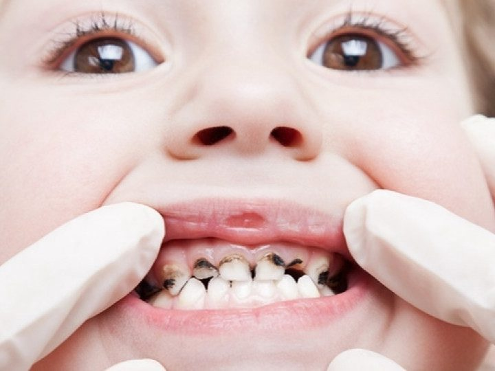 Anxious about Early loss of Baby Teeth; these questions will help