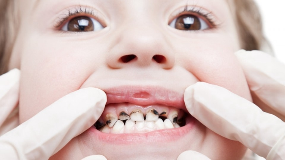 Emergency Pediatric Dentist